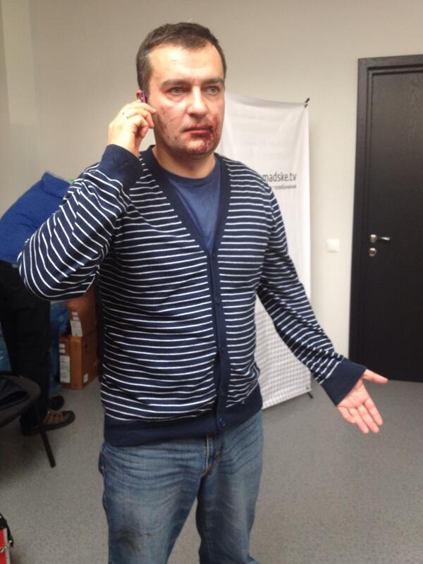 Journalist Dmytro Gnap was attacked by Unknown