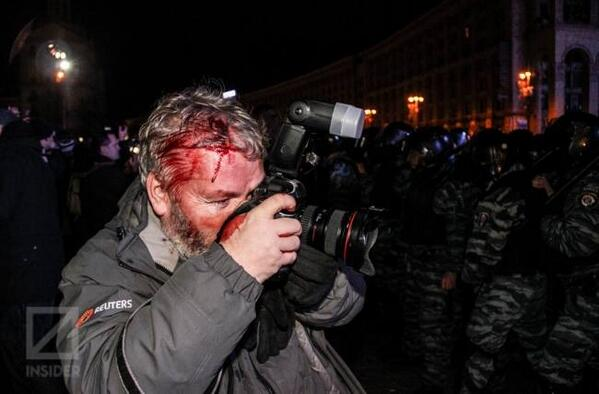 Journalist was beaten by police, still working