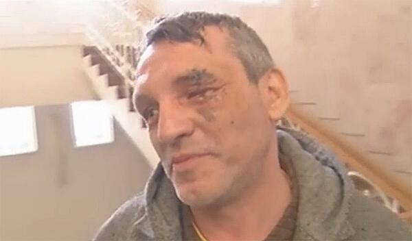Berkut threw a grenade in the face of the photographer