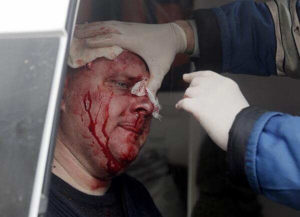 This is one of the officers who was injured in the storming of the police HQ in Horlivka
