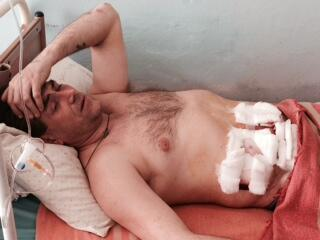 Sergei Shevchenko, pro Russia protestor, injured in clash w/ Ukraine soldiers in Mariupol.