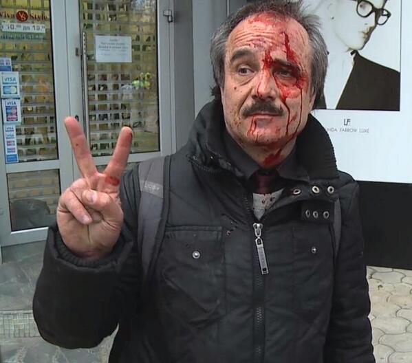 Donetsk: Man beaten today by pro-Russia mob