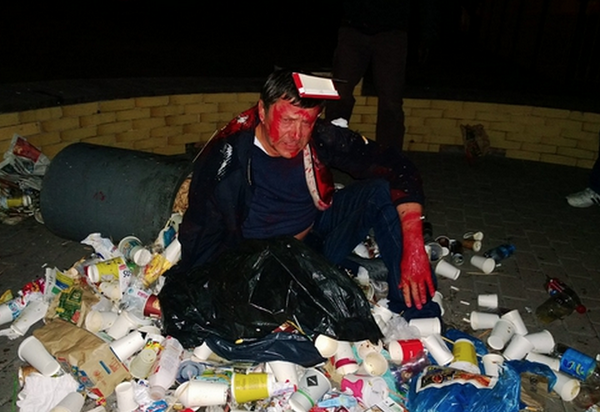 Ukraine mob attacks Parliament candidate, covers him in red paint & throws him in trash can