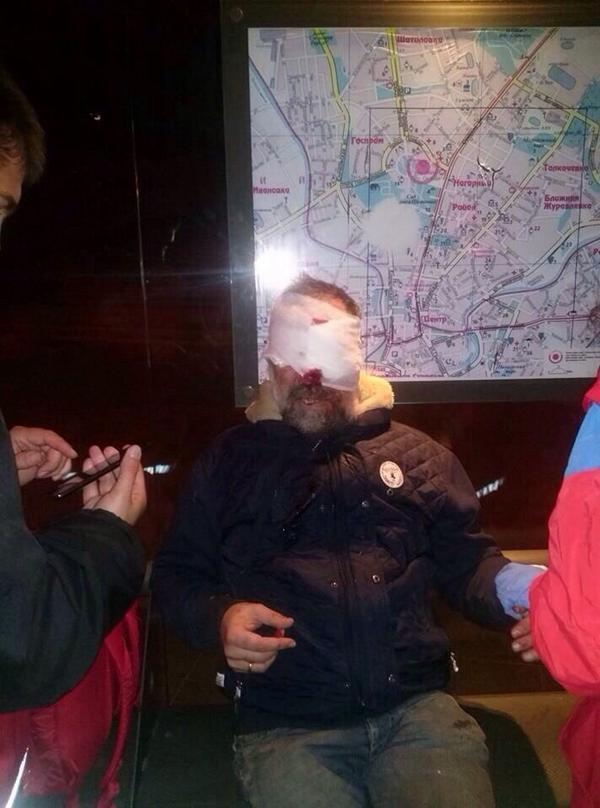 Man was injured with the cable, used to down the monument to Lenin