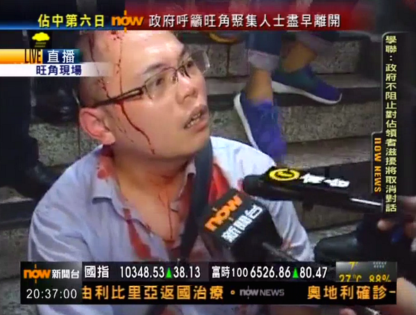OccupyCentral supporter who sustained head injuries in Mong Kok arrested for fighting in a public place.