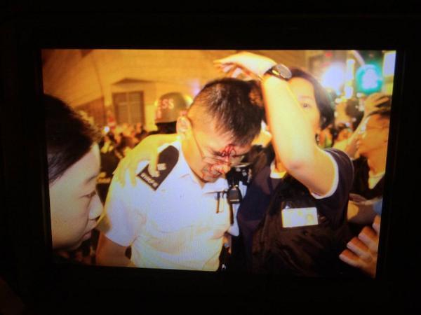Injured policeman