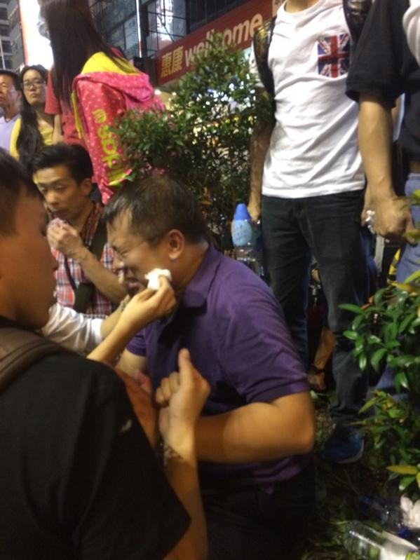 Journalist working to clean out the eyes of the reporter who got pepper sprayed just now.
