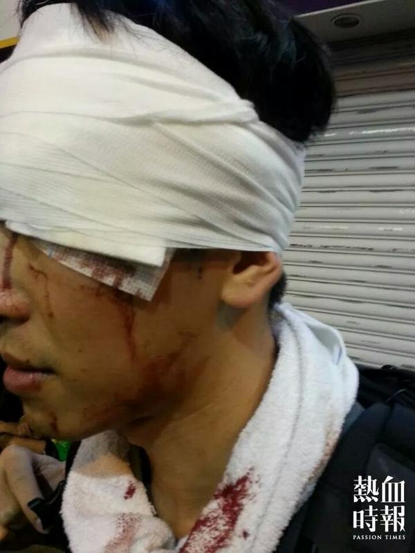 this HK citizen just had his head smashed by HK police baton