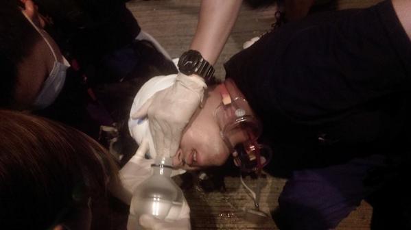 Beaten protester