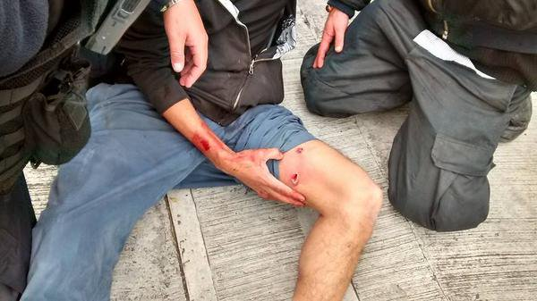 Mexico: Reports that police shot live rounds on @UNAM_MX campus