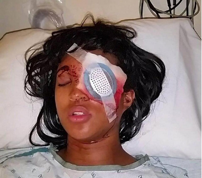 Woman shot in Ferguson while sitting in car Tuesday, loses eye