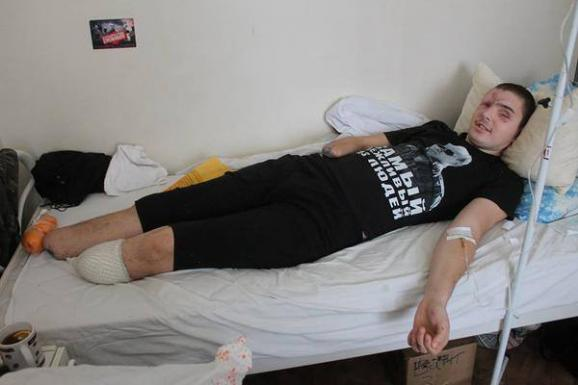 Separatist lost an arm and a legs, but continues to wear a T-shirt with Putin