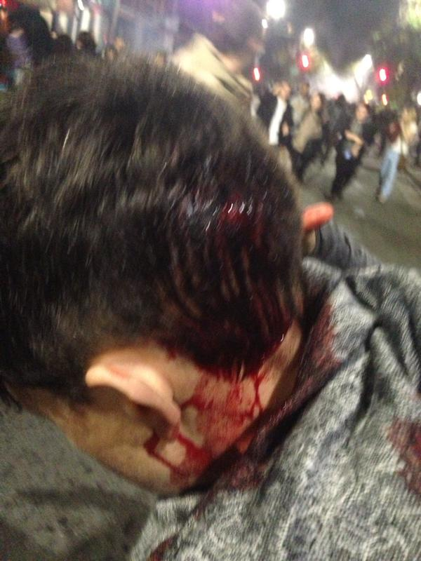 This person was retreating peacefully when they got hit with a baton. berkeleyprotests